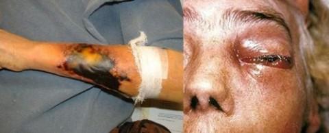 """Синтия"" убива и хора... Снимка:via-midgard.info"