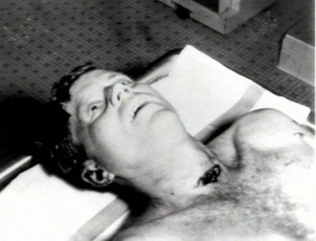 Джон Кенеди, който си отива от този свят с отворени очи